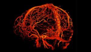Des détails sans précédent sur le cerveau grâce à des scanners dotés d'aimants de plus en plus puissants (revue Nature)